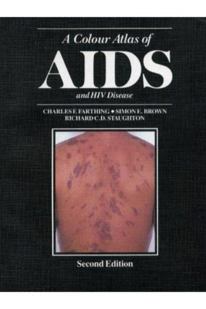 A Colour Atlas Of Aids & Hiv Disease 2/E BooksInn Shop Pakistan